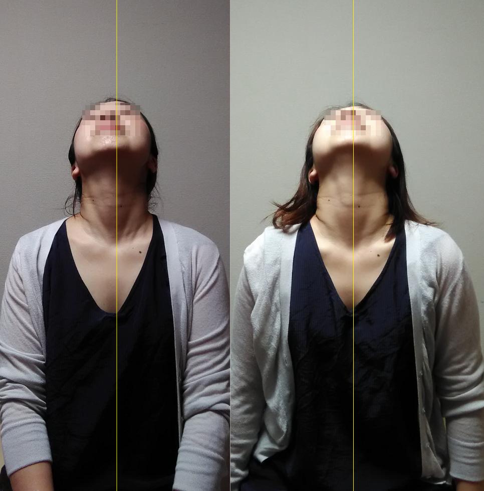 施術前後pt1 頚部伸展の前後比較