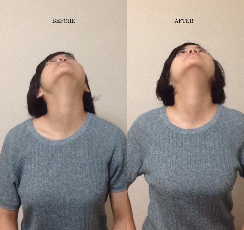 施術前後pt3 頚部伸展の前後比較